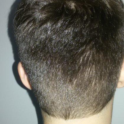 Rok od transplantace, odebraná oblast štěpu vlasu