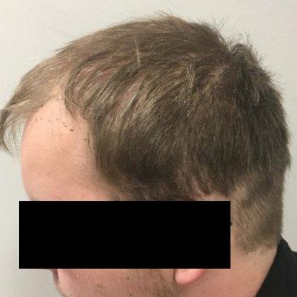 muž 18 let problematická partie čelní oblasti